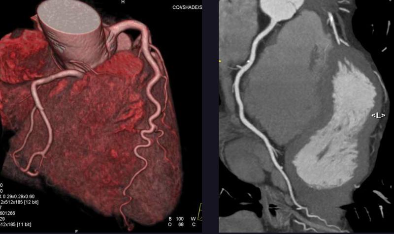 Severe coronary disease diagnosed by CTCA